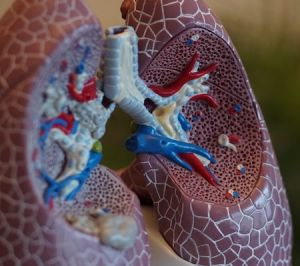 lungs showing respiratory conditions from damp